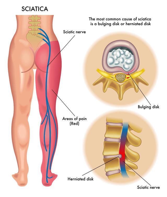sciatica nerve